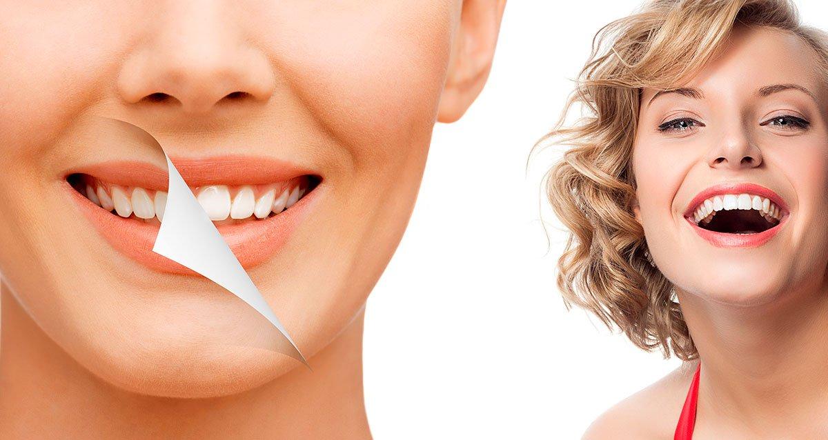 Отбеливание зубов картинки реклама